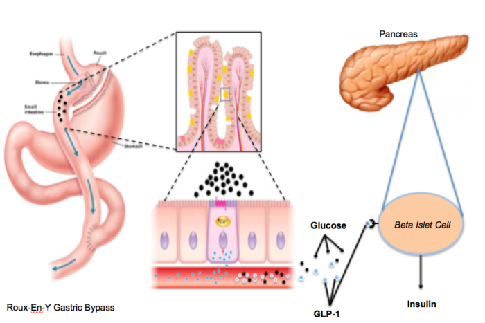 GLP-1 Receptor Antagonism