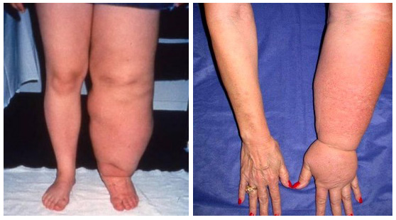 lymphedema examples